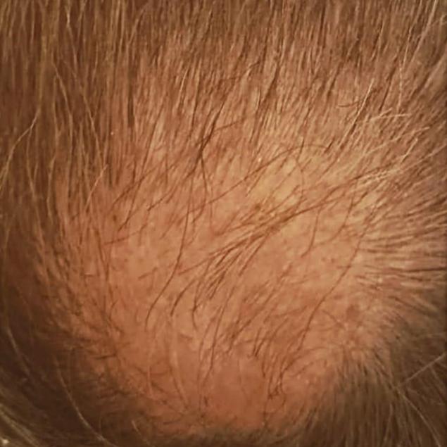 Hair After © BelleStudio