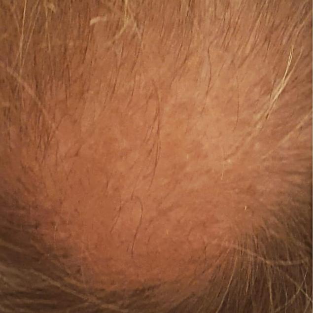 Hair Before © BelleStudio